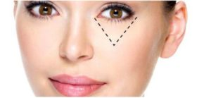 concealer10 300x139 - Make-up tips voor brillendragers